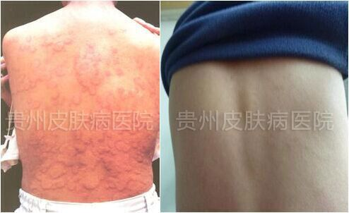 荨麻疹不再作乱 贵州治愈康复皮肤