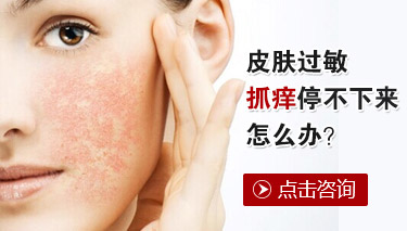 皮肤过敏应吃哪些食物